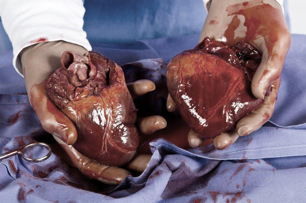 <em>Sich das Fleisch eines anderen Menschen einverleiben.</em> Lévi-Strauss macht Kannibalismus und Organtransplantation vergleichbar.